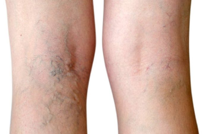 Treating Varicose and Spider Veins