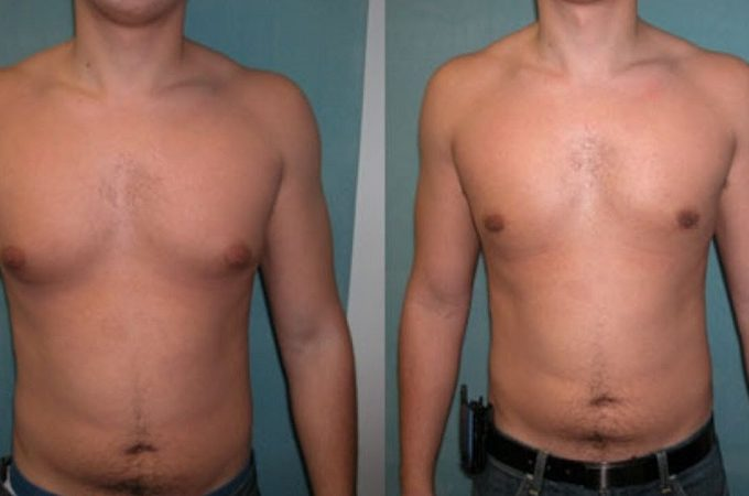 How can I get rid of pubertal gynecomastia?