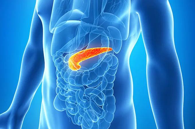 What is pancreatitis?